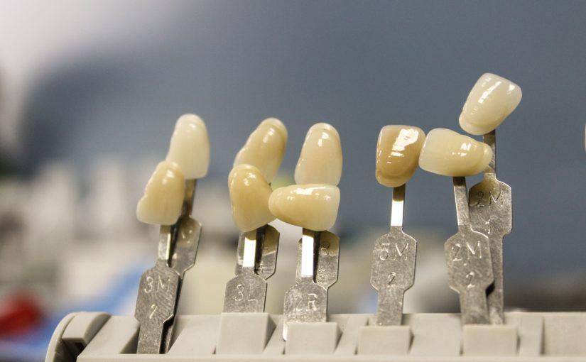 Prześliczne zdrowe zęby także efektowny uroczy uśmiech to powód do płenego uśmiechu.